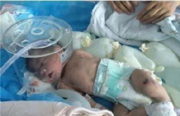 河南母亲夜间喂奶睡着,53天大的宝宝被闷死!